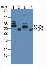 Polyclonal Antibody to Troponin I Type 3, Cardiac (TNNI3)