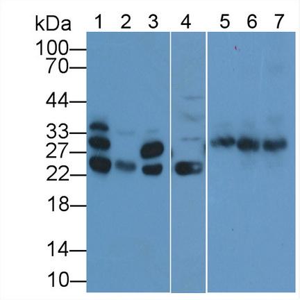 Polyclonal Antibody to Cardiac Troponin I (cTnI)