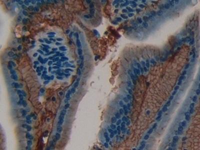 Polyclonal Antibody to Laminin Alpha 1 (LAMA1)
