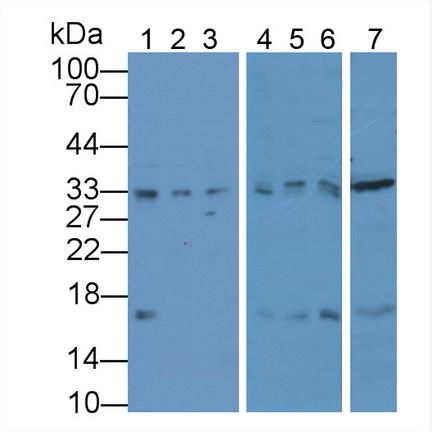 Polyclonal Antibody to Proliferating Cell Nuclear Antigen (PCNA)