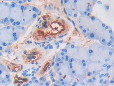 Polyclonal Antibody to Adiponectin (ADP)