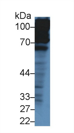 Polyclonal Antibody to Complement Factor H (CFH)