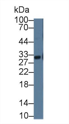 Polyclonal Antibody to Glutathione S Transferase Alpha 3 (GSTa3)
