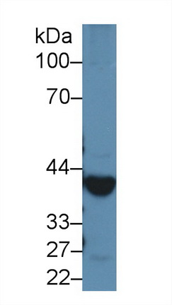 Polyclonal Antibody to Alcohol Dehydrogenase 1 (ADH1)