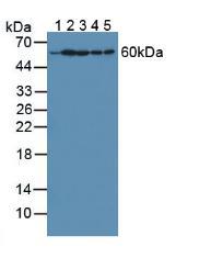 Polyclonal Antibody to Hypoxanthine Phosphoribosyltransferase 1 (HPRT1)