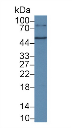 Polyclonal Antibody to Cluster Of Differentiation 38 (CD38)