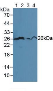 Polyclonal Antibody to B-Cell Leukemia/Lymphoma 2 (Bcl2)