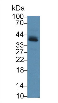 Polyclonal Antibody to Programmed Cell Death Protein 1 Ligand 1 (PDL1)