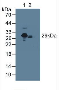 Polyclonal Antibody to C Reactive Protein (CRP)