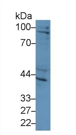 Polyclonal Antibody to Inhibin Beta A (INHbA)