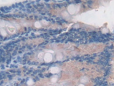 Polyclonal Antibody to Complement Component 2 (C2)