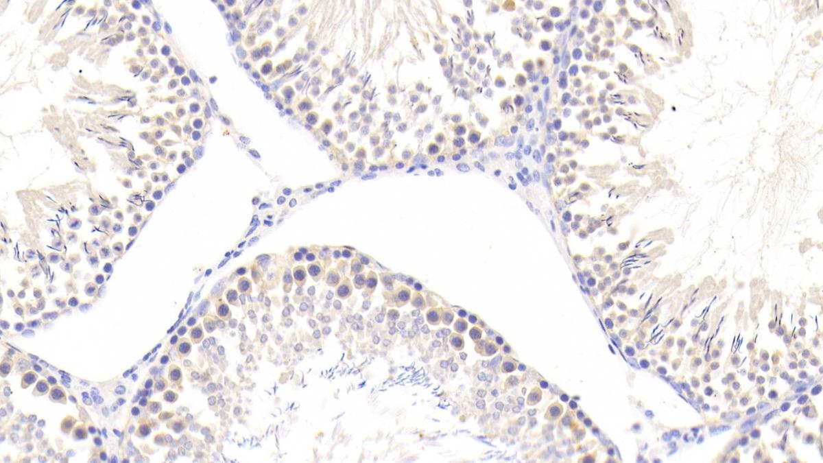 Polyclonal Antibody to Cyclophilin A (CYPA)