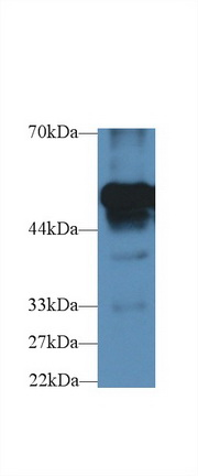 Polyclonal Antibody to Fibrinogen Beta (FGb)