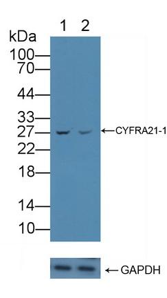 Polyclonal Antibody to Cytokeratin Fragment Antigen 21-1 (CYFRA21-1)