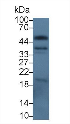 Polyclonal Antibody to Epithelial Cell Adhesion Molecule (EPCAM)