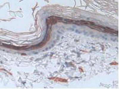 Polyclonal Antibody to Involucrin (iNV)