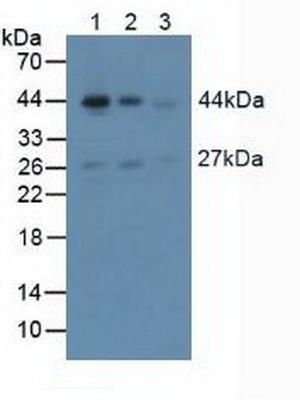 Polyclonal Antibody to Actin Alpha 2, Smooth Muscle (ACTa2)
