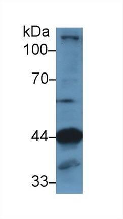 Polyclonal Antibody to Lysosomal Associated Membrane Protein 2 (LAMP2)