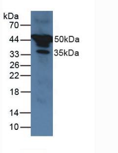 Polyclonal Antibody to Alpha-1-Antitrypsin (a1AT)