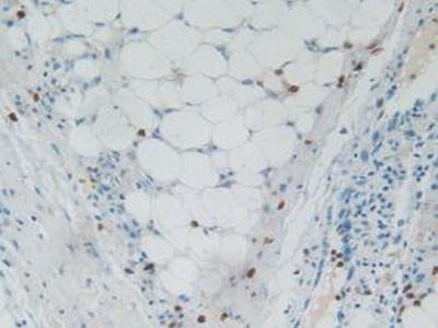 Polyclonal Antibody to Ribonuclease A3 (RNASE3)