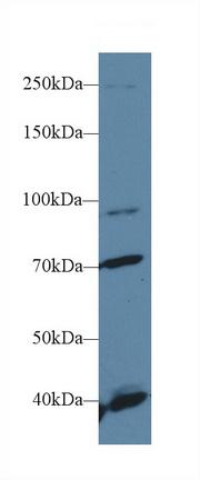 Polyclonal Antibody to Fibroblast Growth Factor Receptor 2 (FGFR2)