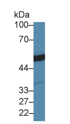 Polyclonal Antibody to Tubulin Beta (TUBb)