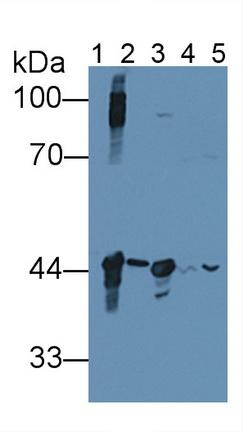 Polyclonal Antibody to Creatine Kinase, Brain (CKB)