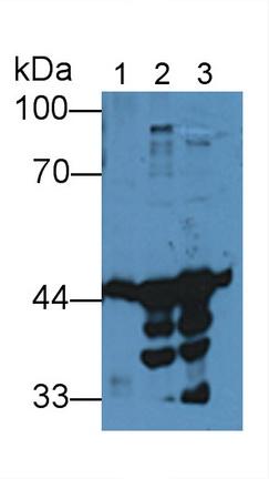 Polyclonal Antibody to Creatine Kinase B (CK-BB)