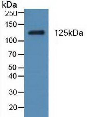 Polyclonal Antibody to Platelet Derived Growth Factor Receptor Alpha (PDGFRa)