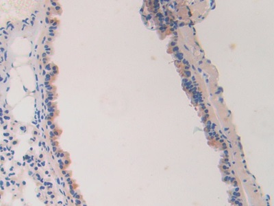 Polyclonal Antibody to Laminin Alpha 4 (LAMa4)