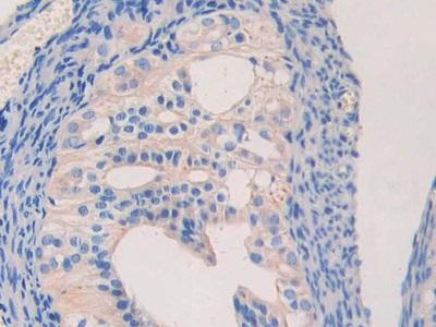 Polyclonal Antibody to Laminin Beta 2 (LAMb2)
