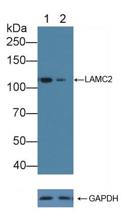 Polyclonal Antibody to Laminin Gamma 2 (LAMC2)