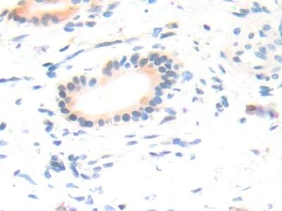 Polyclonal Antibody to Collagen Type XVIII (COL18)