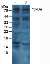 Polyclonal Antibody to Collagen Type VIII Alpha 1 (COL8a1)
