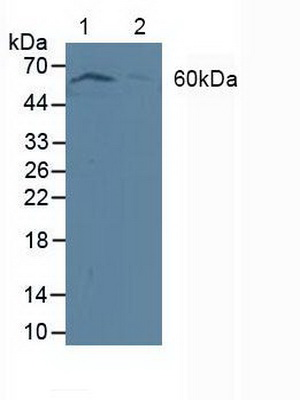 Polyclonal Antibody to Phosphoinositide Dependent Protein Kinase 1 (PDPK1)