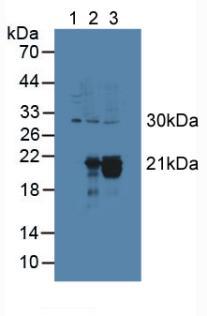 Polyclonal Antibody to Cytoglobin (CYGB)