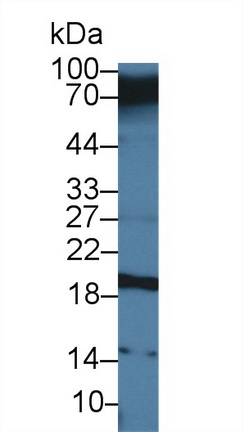 Polyclonal Antibody to Carcinoembryonic Antigen Related Cell Adhesion Molecule 7 (CEACAM7)