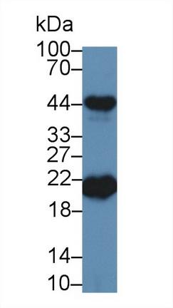 Polyclonal Antibody to Ferritin, Heavy Polypeptide (FTH)