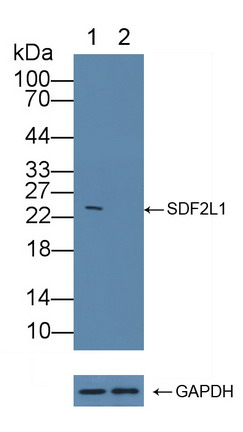 Polyclonal Antibody to Collagen Type III Alpha 1 (COL3a1)