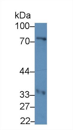 Polyclonal Antibody to Troponin T Type 2, Cardiac (TNNT2)