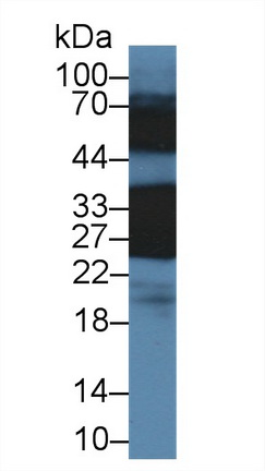 Polyclonal Antibody to Crystallin Beta B1 (CRYbB1)