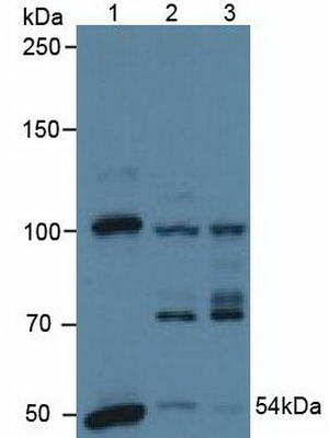 Polyclonal Antibody to Pyruvate Dehydrogenase Complex Component X (PDHX)