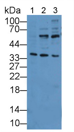 Polyclonal Antibody to Interleukin 1 Receptor Like Protein 1 (IL1RL1)