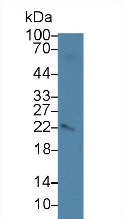 Polyclonal Antibody to Amelogenin, X-Linked (AMELX)
