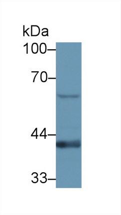 Polyclonal Antibody to Transmembrane Protein 173 (TMEM173)