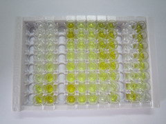 ELISA Kit for Carnitine Palmitoyltransferase 1B, Muscle (CPT1B)