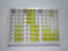 ELISA Kit for Absent In Melanoma 2 (AIM2)