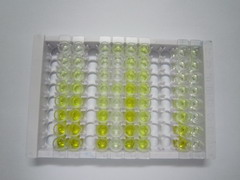 ELISA Kit for Lysophosphatidylcholine Acyltransferase 1 (LPCAT1)