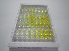 ELISA Kit for AXL Receptor Tyrosine Kinase (AXL)